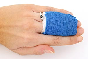 エポスカード海外旅行保険 傷害治療費用のイメージ画像